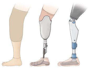 Three types of leg prosthesis.