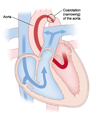 Front view cross section of heart showing coarctation (narrowing) of the aorta. Arrows show blood flowing from left side of heart through aorta and being partly blocked by narrowing. Arrows show blood flowing from right side of heart through pulmonary artery.