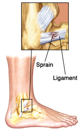 Side view of lower leg showing leg and heel bones and ligaments. Closeup shows sprain (damage) in ligament.