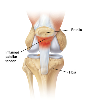 Front view of knee joint showing patella, tibia, and inflamed patellar tendon.