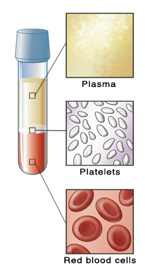 Vial of blood separated into parts, with closeups of plasma, platelets, and red blood cells.