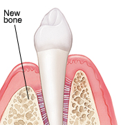 Tooth in cross section of gum and bone. New bone has grown where graft was placed.