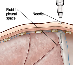Cross section of body wall showing needle removing pleural fluid.