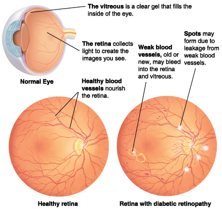 Cross section of eye showing vitreous and retina. Front view of healthy retina showing blood vessels. Front view of retina with diabetic retinopathy.