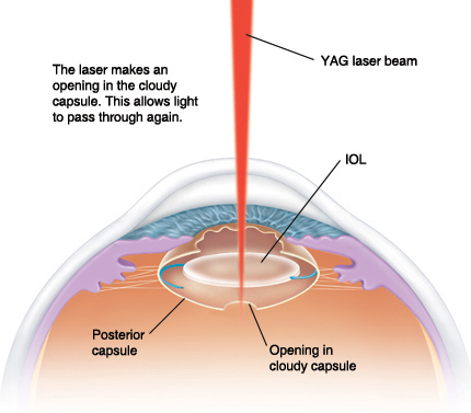 Cross section side view of eye showing YAG laser beam entering clear cornea and through pupil to IOL in cloudy posterior capsule. Laser makes opening in cloudy capsule to allow light to pass through again.