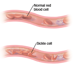 Cross section of vessel showing normal blood cells. Cross section of blood vessel showing sickle cell anemia.