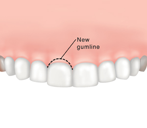 Dotted line showing where gum tissue will be removed above tooth.