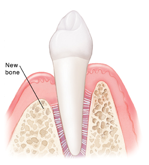 Tooth and gums after healing from tissue regeneration.