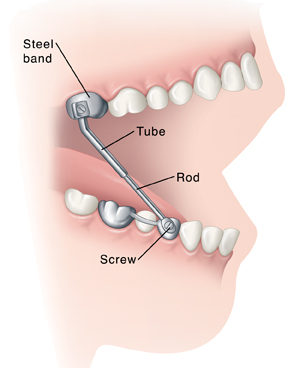 Side view of teeth in open mouth showing Herbst appliance attached to lower and upper teeth.