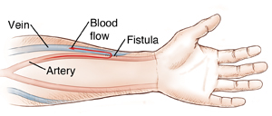 Forearm and hand showing vein and artery connected by stitches. Arrow shows blood flow going from artery to vein.
