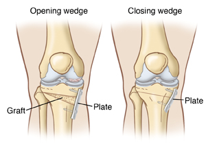 Front view of bony structures of two knees showing closed wedge and open wedge osteotomy.