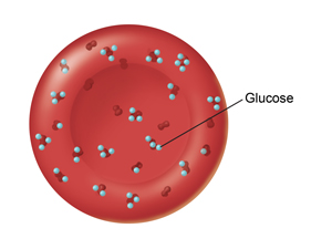 Red blood cell with too much glucose stuck to it.