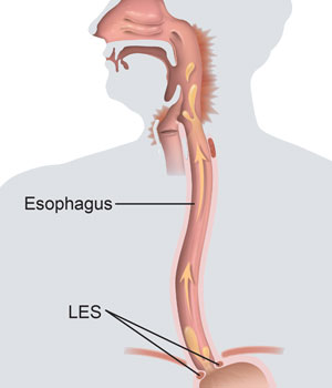 Front view of human figure showing esophagus and lower esophageal sphincter.