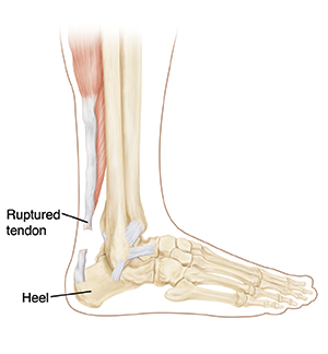 Side view of lower leg showing bones and ruptured achilles tendon.