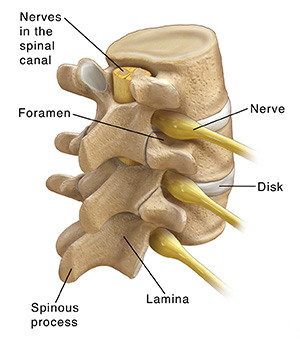 Three-quarter back view of three lumbar vertebrae