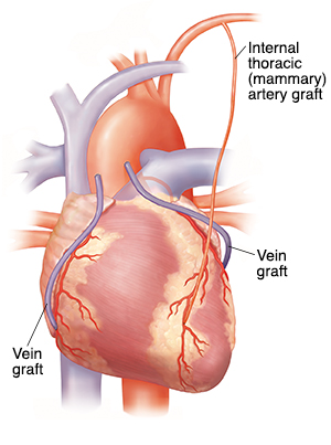 Front view of heart showing three bypass grafts on coronary arteries.