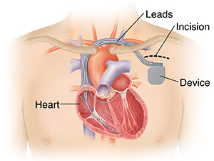 Outline of man's chest showing showing biventricular implantable cardioverter defibrillator in chest with three leads going into heart chambers.