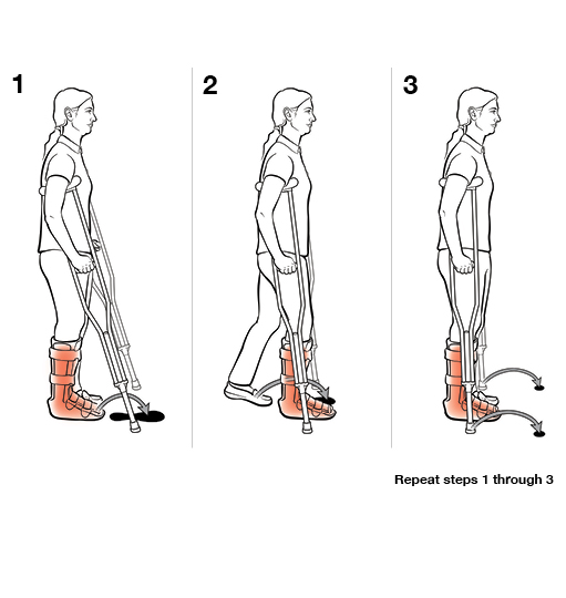 3 steps in using crutches with step to (weight bearing)