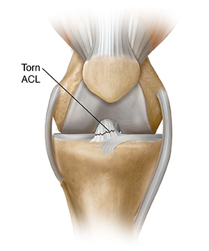 Front view of knee joint showing tear in anterior cruciate ligament.