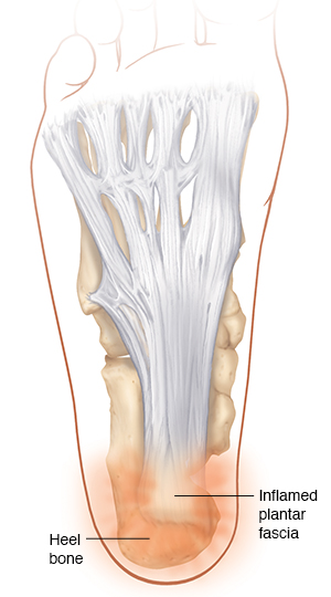Bottom view of the foot showing bones and the plantar fascia with plantar fasciitis.