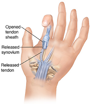 Palm view of hand showing surgery on tendon and synovium to release trigger finger.
