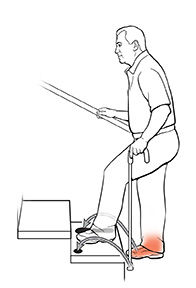 Side view of a man using a cane on stairs. The arrows show where he should put his cane and injured foot to move up the stairs.