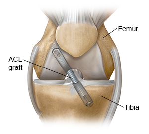 Front view of knee showing graft repair of anterior cruciate ligament.