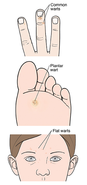 Common wart on end of finger. Plantar wart on sole of foot. Flat warts on face.