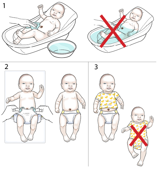 3 steps in caring for a newborn's umbilical cord.