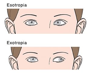 Closeup of eyes from front showing esotropia and exotropia.