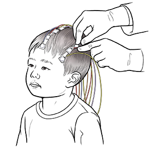 Hands of healthcare provider placing EEG discs on young child's head. Discs are connected to wires.
