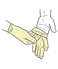 Gloved hand pulling sterile glove onto fingers of opposite hand.