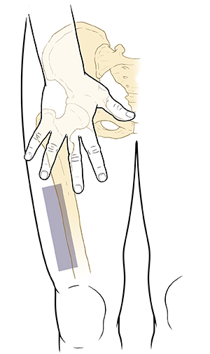 Outline front view of lower body, hip, and thigh with pelvic and leg bones showing. Hand with fingers spread is palm down on front of thigh where leg meets body. Shaded rectangle below hand and above knee, towards side of leg.