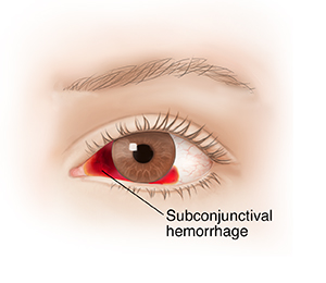 Front view of eye with subconjunctival hemorrhage.