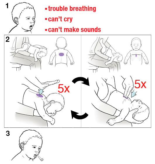3 steps for doing the Heimlich maneuver on a baby
