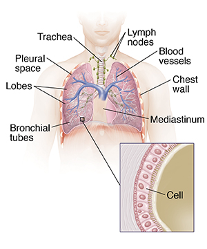 Front view of male chest showing trachea and lungs and inset showing bronchiole cells.