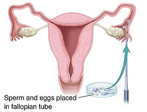 Front view cross section of female reproductive tract showing instrument injecting sperm and eggs into fallopian tube.