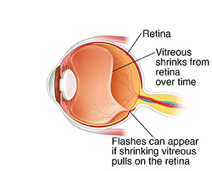 Side view cross section of eye showing vitreous shrinking and pulling on retina.
