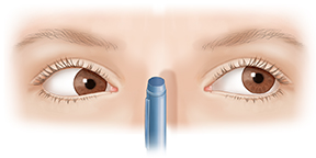 Front view of adult eyes focusing with convergence insufficiency.