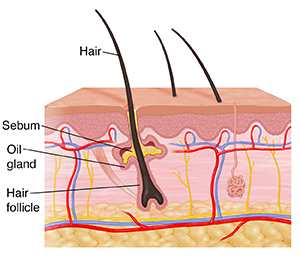 Cross section of skin showing dermis and epidermis.