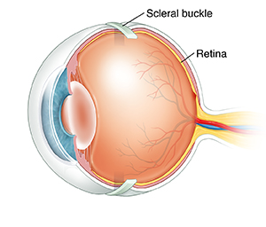 Three-quarter view of cross sectioned eye showing scleral buckle around outside of eyeball.