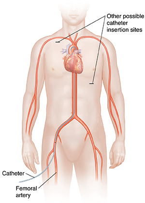 Front view of male figure showing cardiovascular system with catheter inserted in femoral artery to carotid artery. Other possible catheter insertion sites shown.