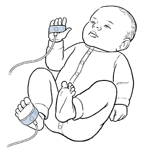 Baby with oxygen sensors wrapped around hand and foot.