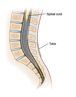 Side view cross section of lower spine showing spinal cord and spinal nerves in spinal canal. Catheter is inserted in skin between two vertebrae and into spinal canal. Catheter does not go into sac surrounding spinal nerves.