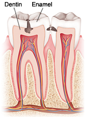 Cross section of two teeth in jawbone. Enamel covers crown of tooth with dentin underneath. Tooth decay in top of tooth and between teeth.