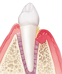 Tooth in cross section of gum and bone. Plaque on base and root of tooth. Deep pocket in gum at base of tooth. Gum is receding and swollen.