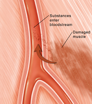 Cross section of artery in muscle. Muscle next to artery is damaged. Arrow shows substances from damage entering bloodstream through artery wall.