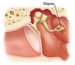 Cross section of ear showing outer, inner, and middle ear structures with damaged stapes.