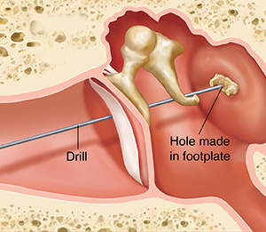 Cross section of ear showing outer, inner, and middle ear structures showing instrument removing damaged stapes.