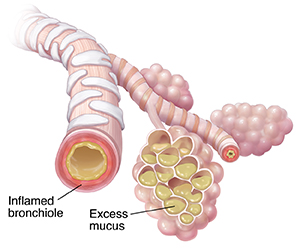 Bronchiole and alveolar sacs with mucus buildup and inflammation because of pneumonia.